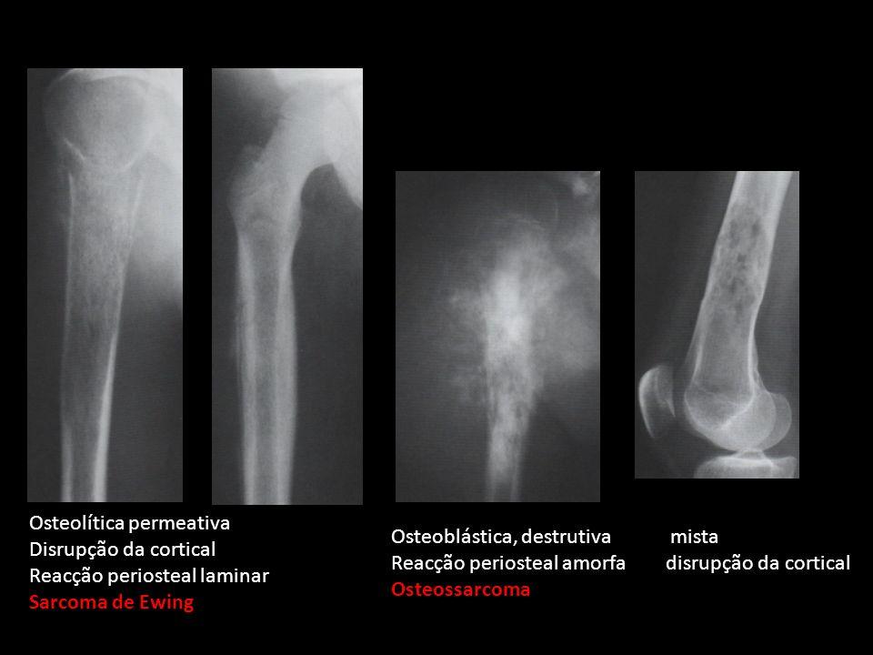 Osteoblástica, destrutiva mista Reacção periosteal amorfa disrupção da cortical Osteossarcoma Osteolítica permeativa Disrupção da cortical Reacção per