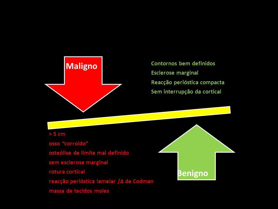Contornos bem definidos Esclerose marginal Reacção perióstica compacta Sem interrupção da cortical > 5 cm osso corroido osteólise de limite mal defini