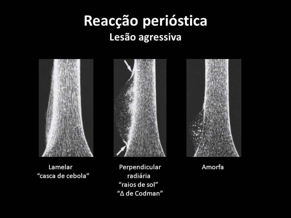Reacção perióstica Lesão agressiva Lamelar Perpendicular Amorfa casca de cebola radiária raios de sol de Codman