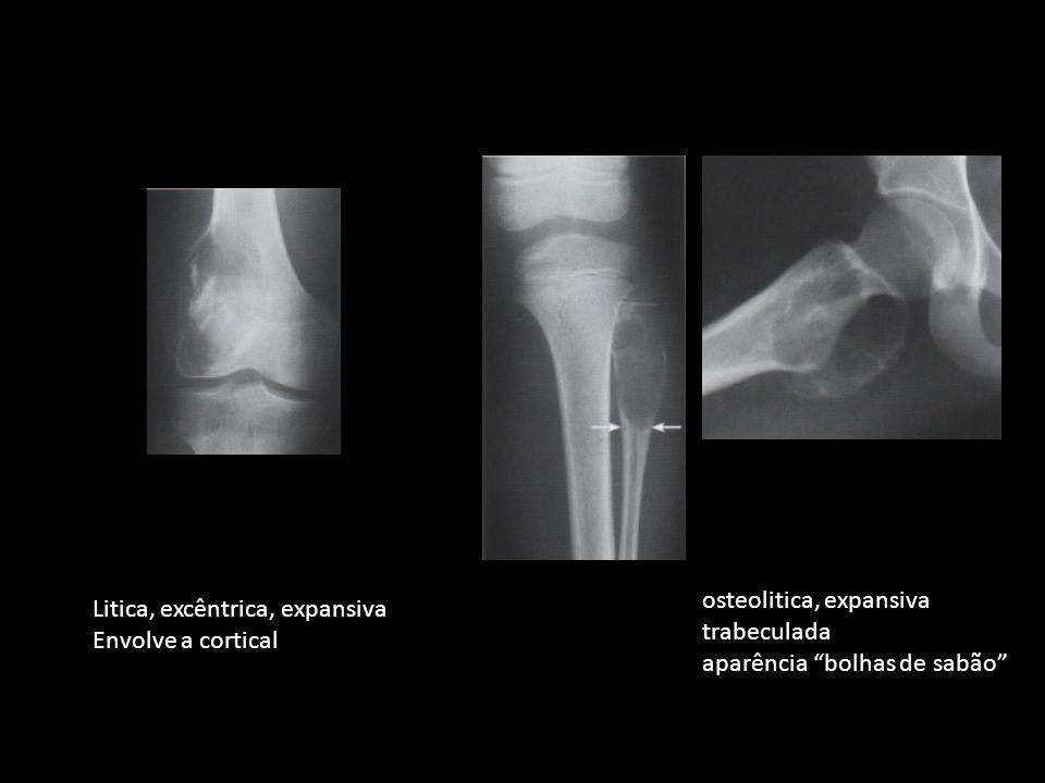Litica, excêntrica, expansiva Envolve a cortical osteolitica, expansiva trabeculada aparência bolhas de sabão