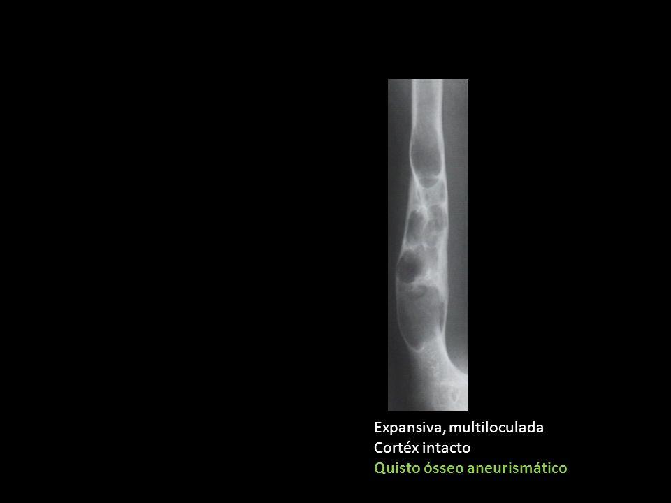 Expansiva, multiloculada Cortéx intacto Quisto ósseo aneurismático