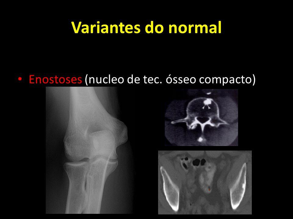 Enostoses (nucleo de tec. ósseo compacto)