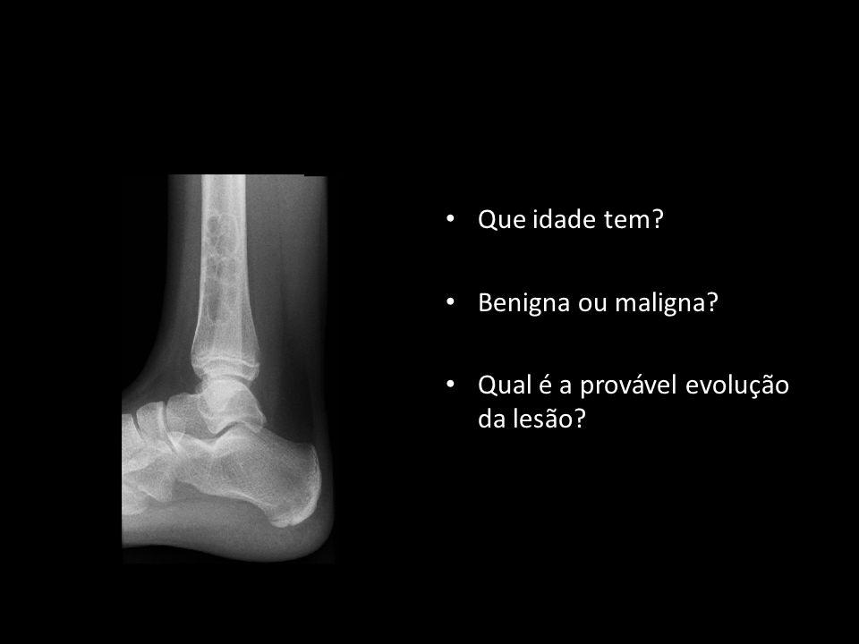 Que idade tem? Benigna ou maligna? Qual é a provável evolução da lesão?