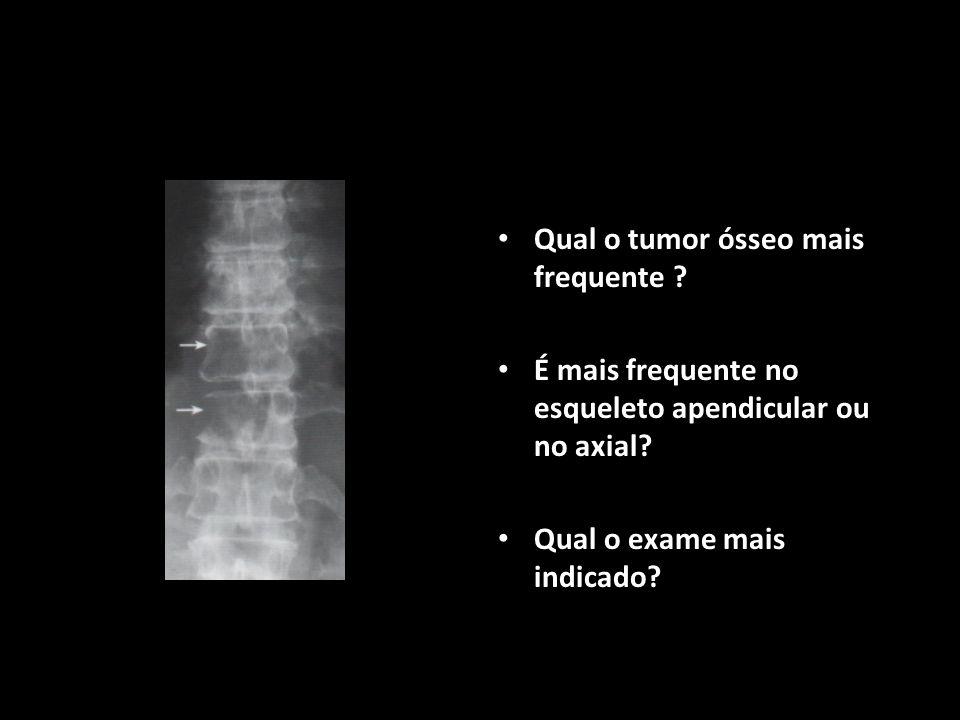 Qual o tumor ósseo mais frequente ? É mais frequente no esqueleto apendicular ou no axial? Qual o exame mais indicado?