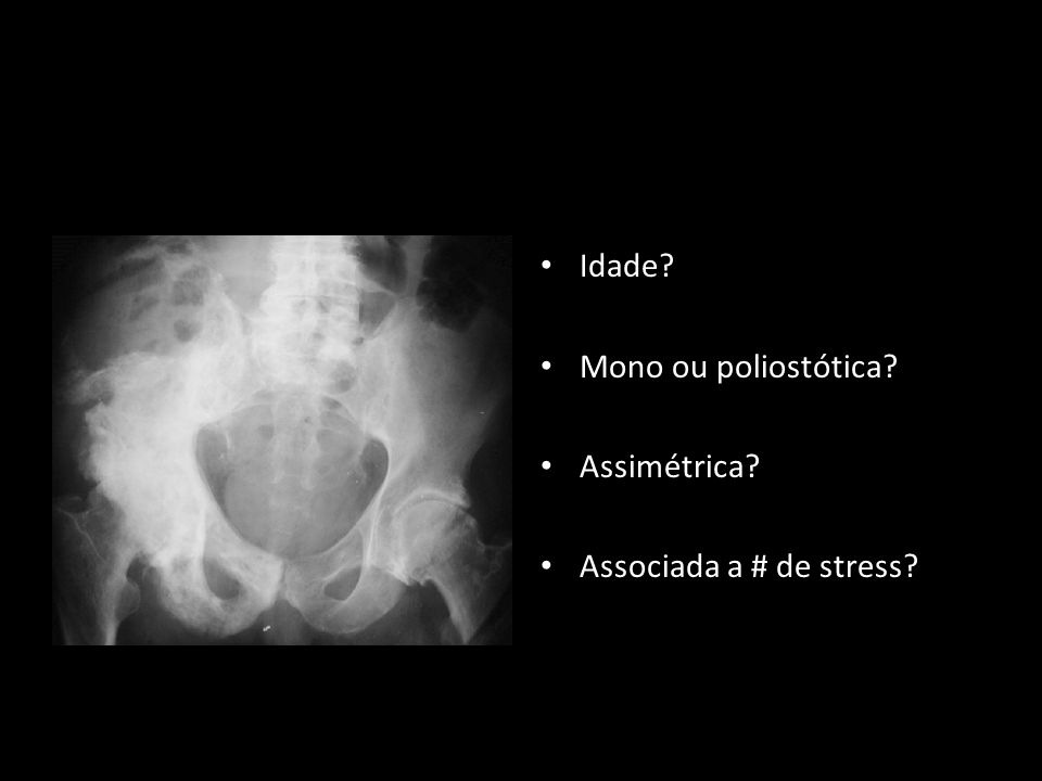 Idade? Mono ou poliostótica? Assimétrica? Associada a # de stress?