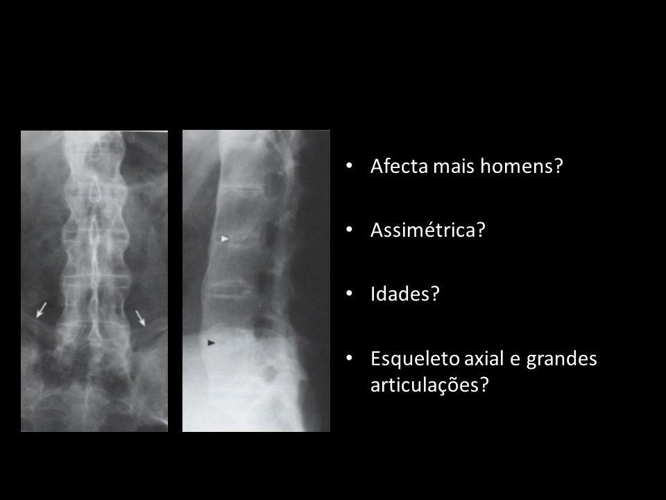 Afecta mais homens? Assimétrica? Idades? Esqueleto axial e grandes articulações?
