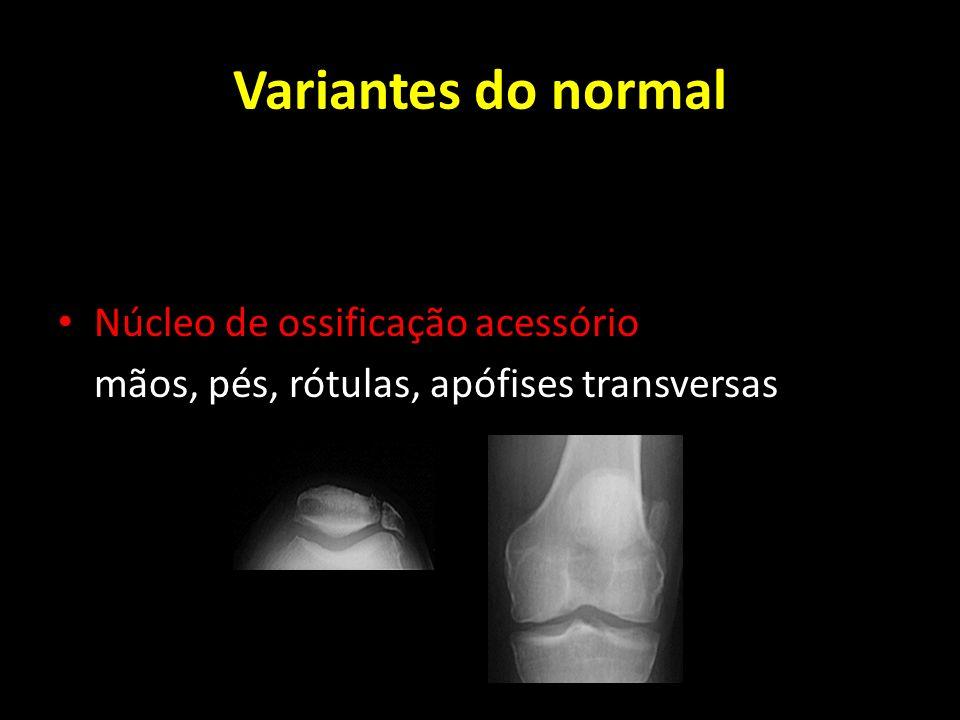 Variantes do normal Núcleo de ossificação acessório mãos, pés, rótulas, apófises transversas