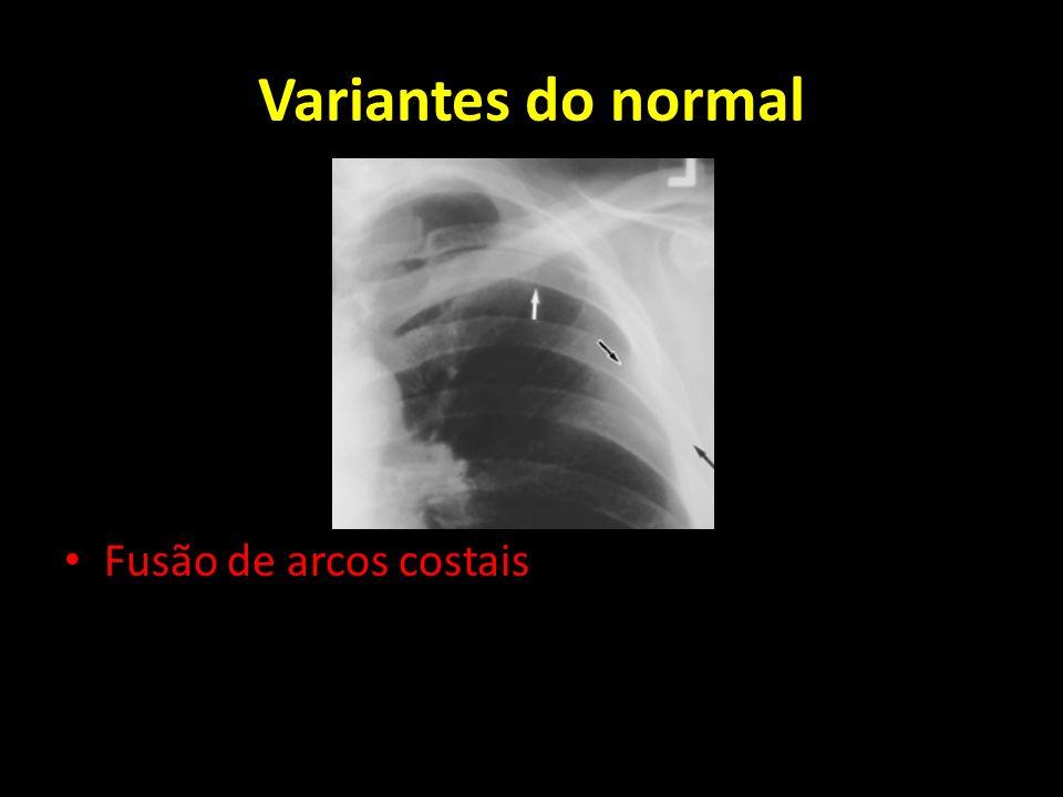 Variantes do normal Fusão de arcos costais