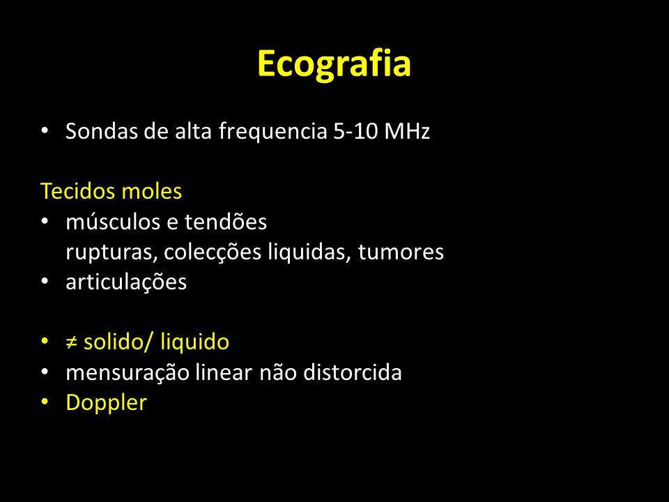 Ecografia Sondas de alta frequencia 5-10 MHz Tecidos moles músculos e tendões rupturas, colecções liquidas, tumores articulações solido/ liquido mensu