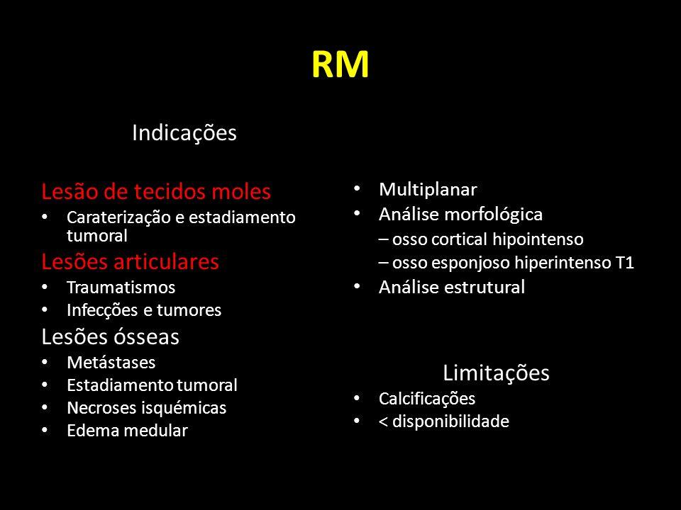 RM Indicações Lesão de tecidos moles Caraterização e estadiamento tumoral Lesões articulares Traumatismos Infecções e tumores Lesões ósseas Metástases