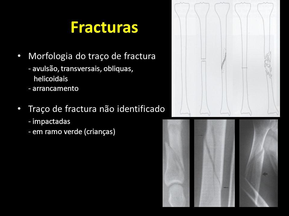 Fracturas Morfologia do traço de fractura - avulsão, transversais, obliquas, helicoidais - arrancamento Traço de fractura não identificado - impactada