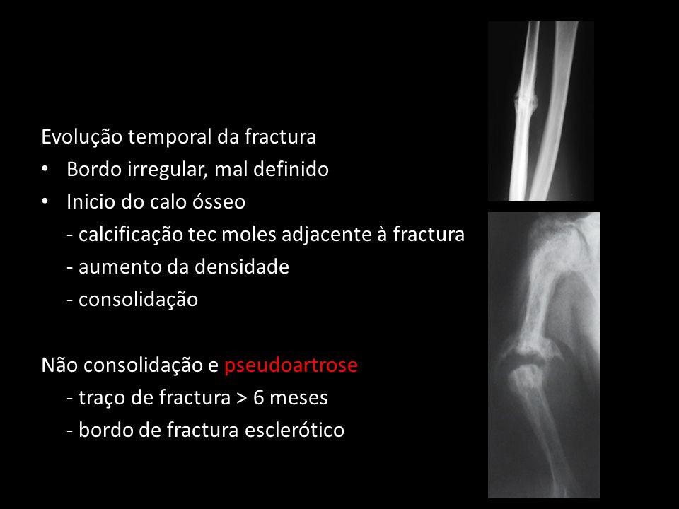 Evolução temporal da fractura Bordo irregular, mal definido Inicio do calo ósseo - calcificação tec moles adjacente à fractura - aumento da densidade