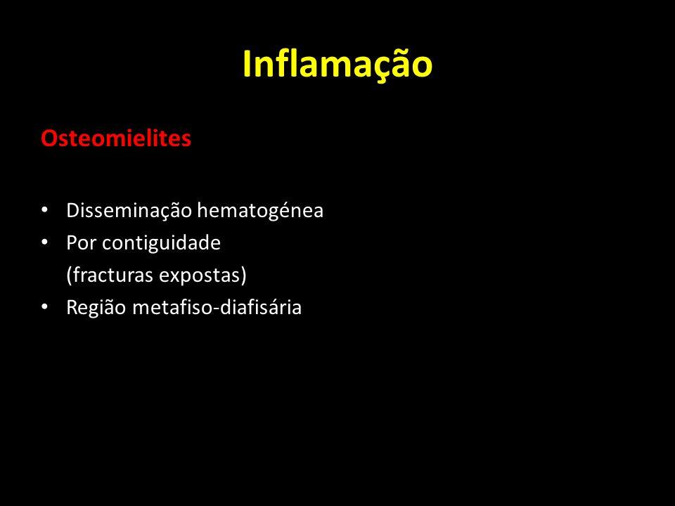 Inflamação Osteomielites Disseminação hematogénea Por contiguidade (fracturas expostas) Região metafiso-diafisária