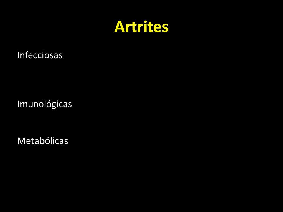 Artrites Infecciosas Piogénicas Tuberculosa Imunológicas Artrite reumatóide Metabólicas Hiperuricémia (gota) Pequenas articulações (podagra)