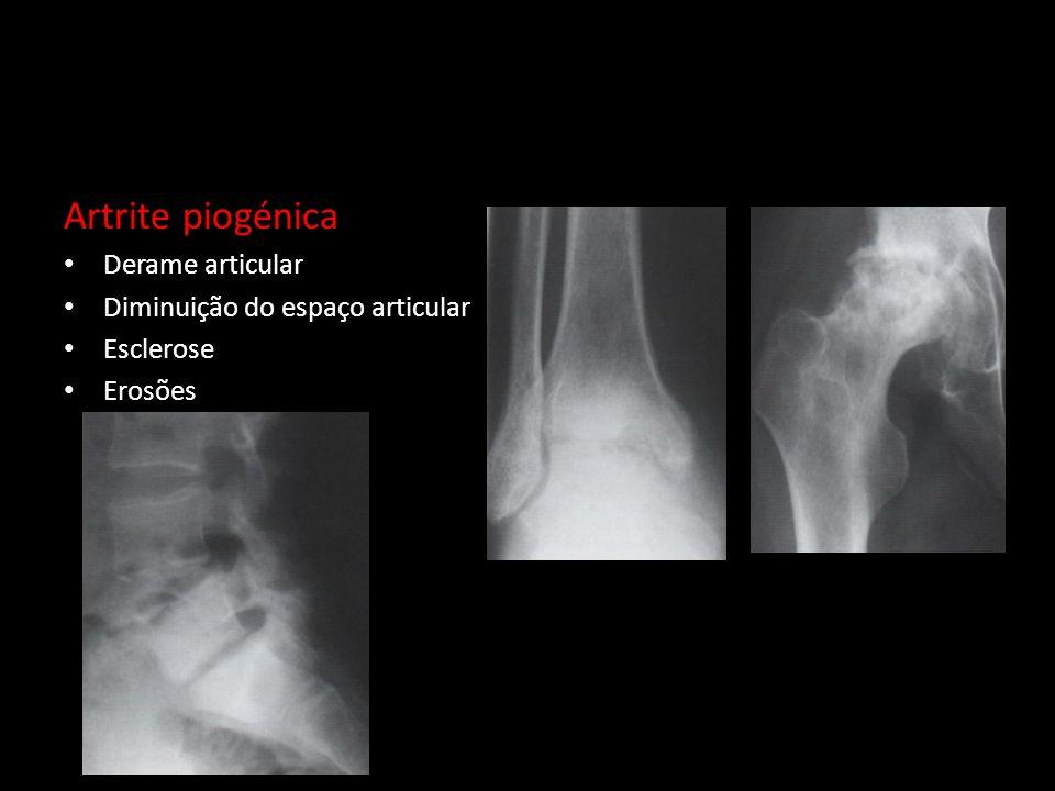 Artrite piogénica Derame articular Diminuição do espaço articular Esclerose Erosões