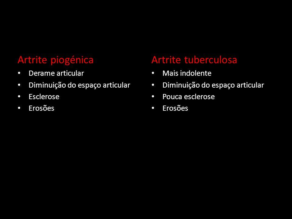Artrite piogénica Derame articular Diminuição do espaço articular Esclerose Erosões Artrite tuberculosa Mais indolente Diminuição do espaço articular