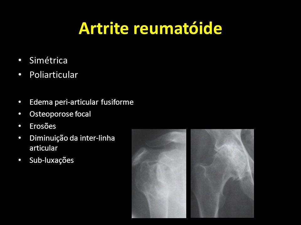 Artrite reumatóide Simétrica Poliarticular Edema peri-articular fusiforme Osteoporose focal Erosões Diminuição da inter-linha articular Sub-luxações