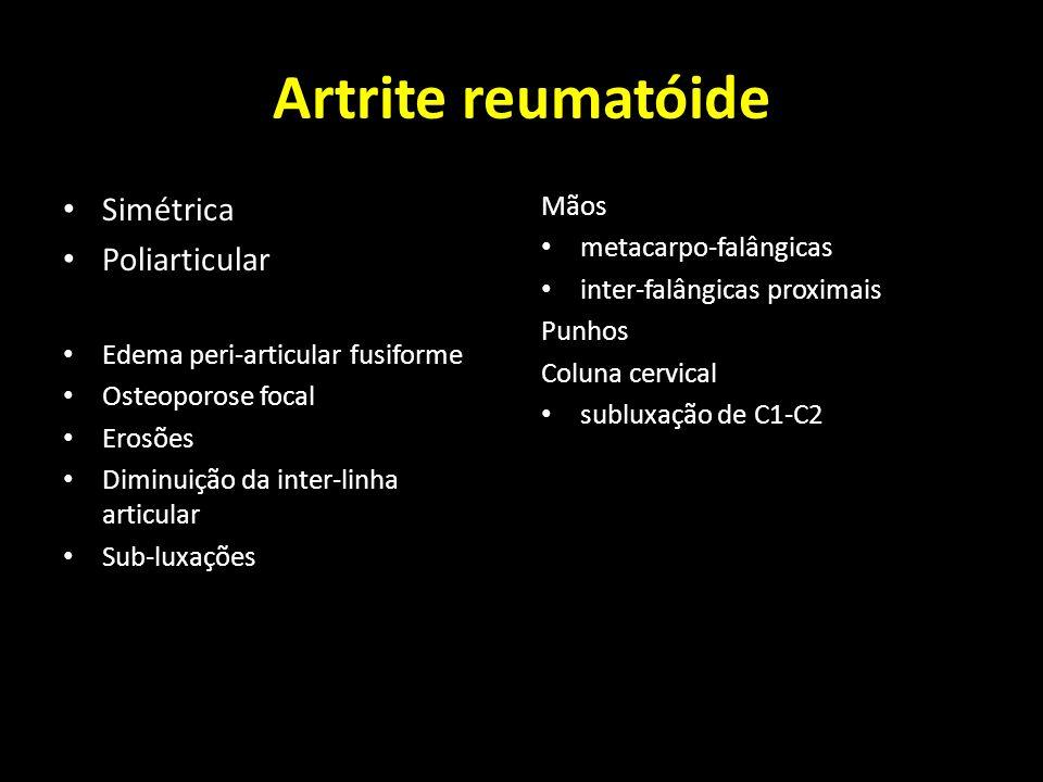 Artrite reumatóide Simétrica Poliarticular Edema peri-articular fusiforme Osteoporose focal Erosões Diminuição da inter-linha articular Sub-luxações M