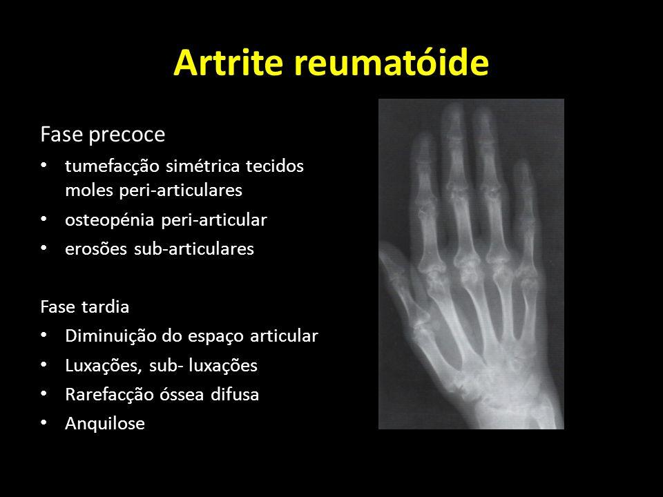 Artrite reumatóide Fase precoce tumefacção simétrica tecidos moles peri-articulares osteopénia peri-articular erosões sub-articulares Fase tardia Dimi