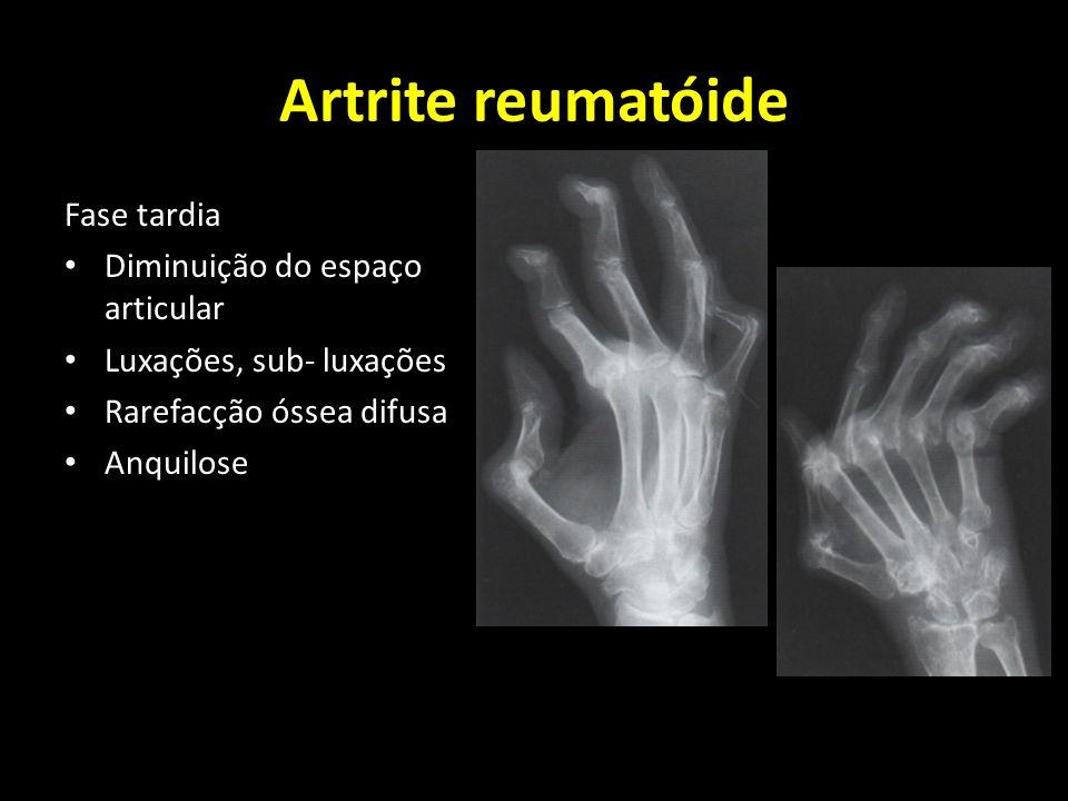 Artrite reumatóide Fase tardia Diminuição do espaço articular Luxações, sub- luxações Rarefacção óssea difusa Anquilose