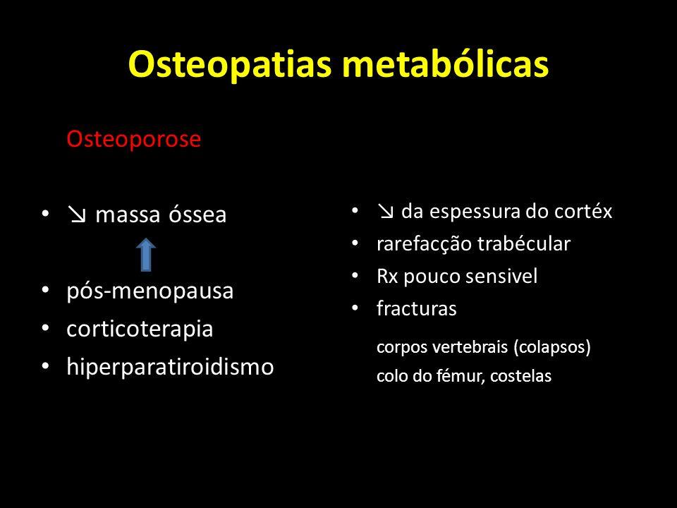 Osteopatias metabólicas Osteoporose massa óssea pós-menopausa corticoterapia hiperparatiroidismo da espessura do cortéx rarefacção trabécular Rx pouco