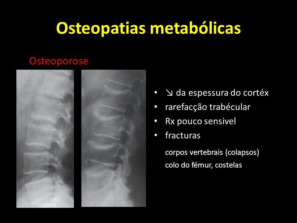 Osteopatias metabólicas Osteoporose da espessura do cortéx rarefacção trabécular Rx pouco sensivel fracturas corpos vertebrais (colapsos) colo do fému