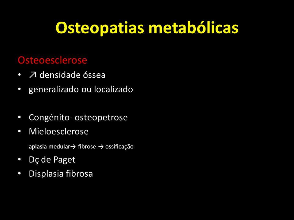 Osteopatias metabólicas Osteoesclerose densidade óssea generalizado ou localizado Congénito- osteopetrose Mieloesclerose aplasia medular fibrose ossif