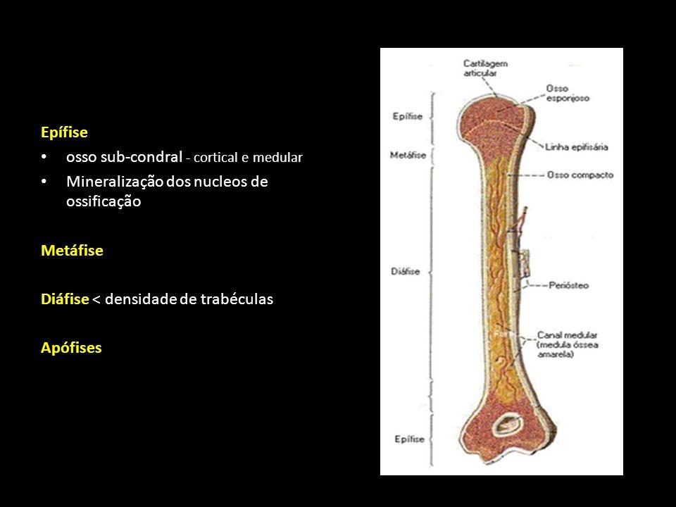 Epífise osso sub-condral - cortical e medular Mineralização dos nucleos de ossificação Metáfise Diáfise < densidade de trabéculas Apófises Físe Radiotransparente na criança Radiopaco no adulto