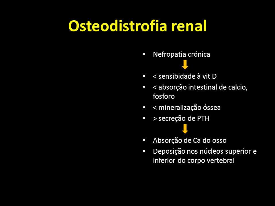 Osteodistrofia renal Nefropatia crónica < sensibidade à vit D < absorção intestinal de calcio, fosforo < mineralização óssea > secreção de PTH Absorçã