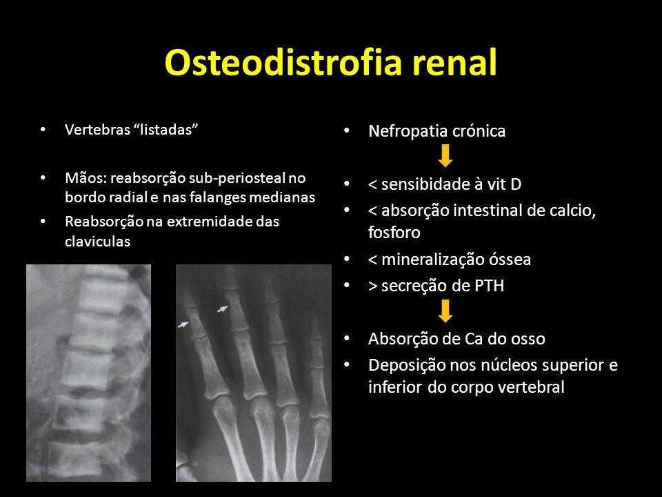Osteodistrofia renal Vertebras listadas Mãos: reabsorção sub-periosteal no bordo radial e nas falanges medianas Reabsorção na extremidade das clavicul