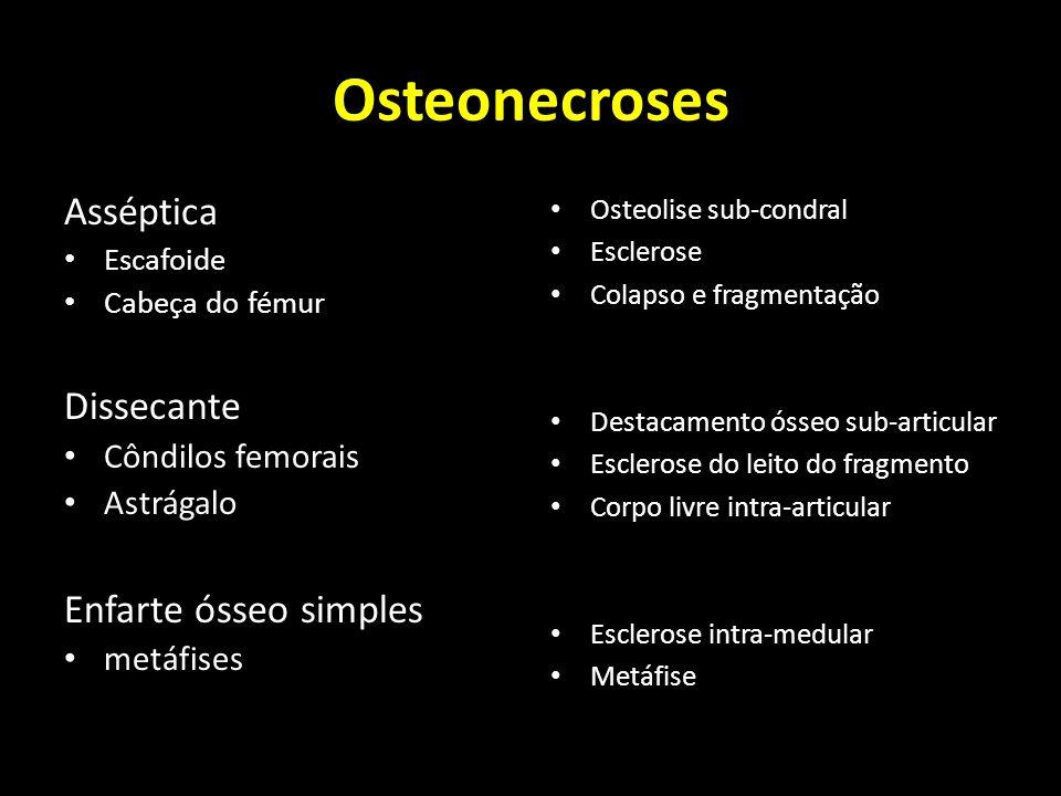 Osteonecroses Asséptica Escafoide Cabeça do fémur Dissecante Côndilos femorais Astrágalo Enfarte ósseo simples metáfises Osteolise sub-condral Esclero