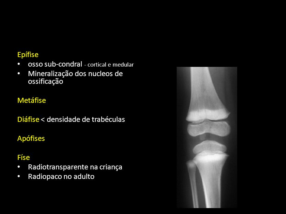 Aumento da densidade por substituição do osso medular por osso compacto.