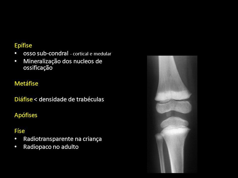 Tumores ósseos primitivos Benignos Quisto ósseo Fibroma não ossificante Condroblastoma Osteoblastoma Osteocondroma - exostose Malignos Condrossarcoma Osteossarcoma Fibrossarcoma