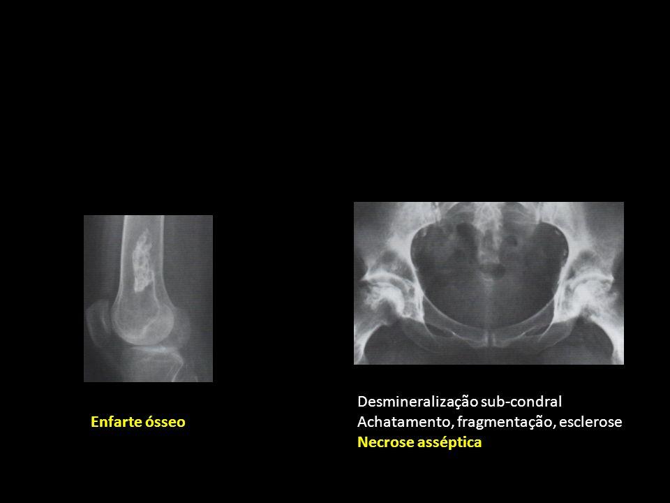 Enfarte ósseo Desmineralização sub-condral Achatamento, fragmentação, esclerose Necrose asséptica