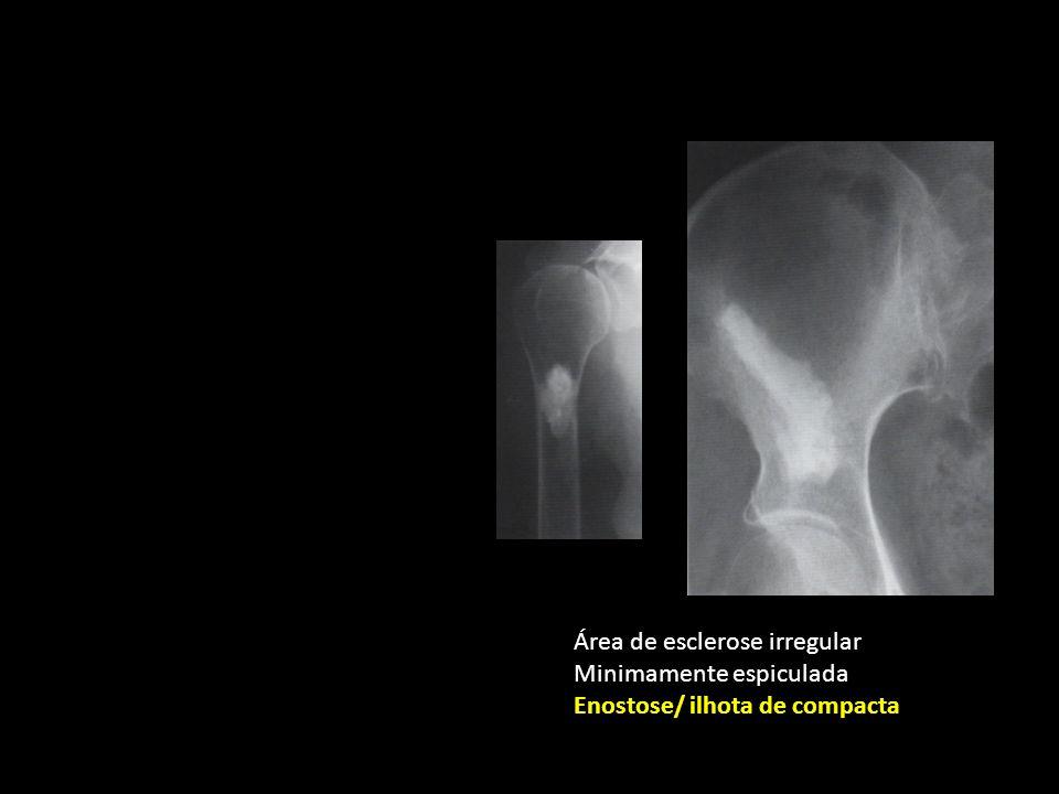 Área de esclerose irregular Minimamente espiculada Enostose/ ilhota de compacta