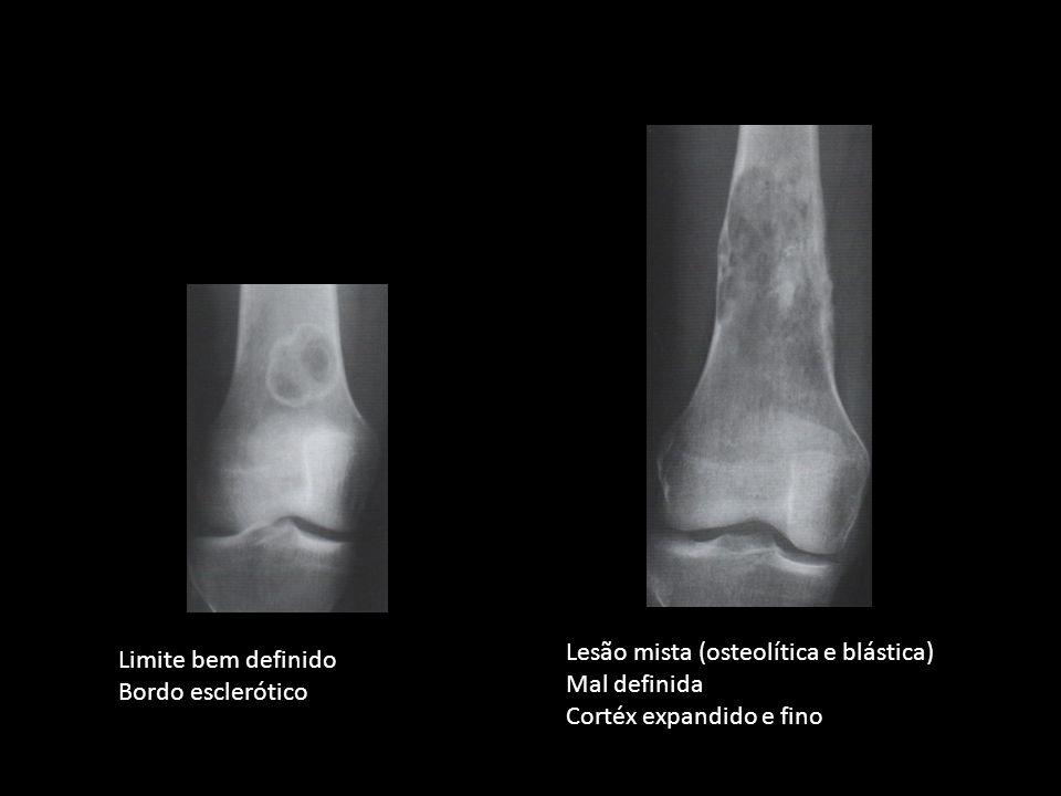 Limite bem definido Bordo esclerótico Lesão mista (osteolítica e blástica) Mal definida Cortéx expandido e fino
