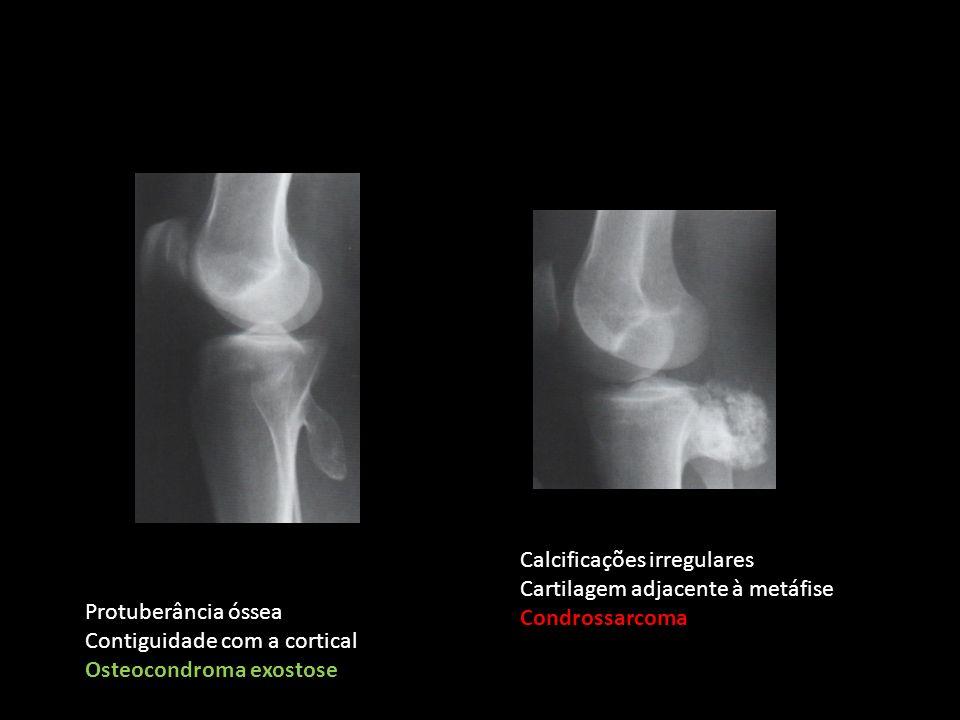 Protuberância óssea Contiguidade com a cortical Osteocondroma exostose Calcificações irregulares Cartilagem adjacente à metáfise Condrossarcoma