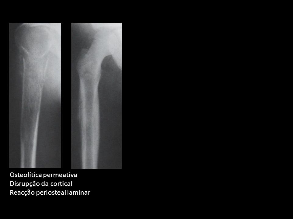 Osteolítica permeativa Disrupção da cortical Reacção periosteal laminar