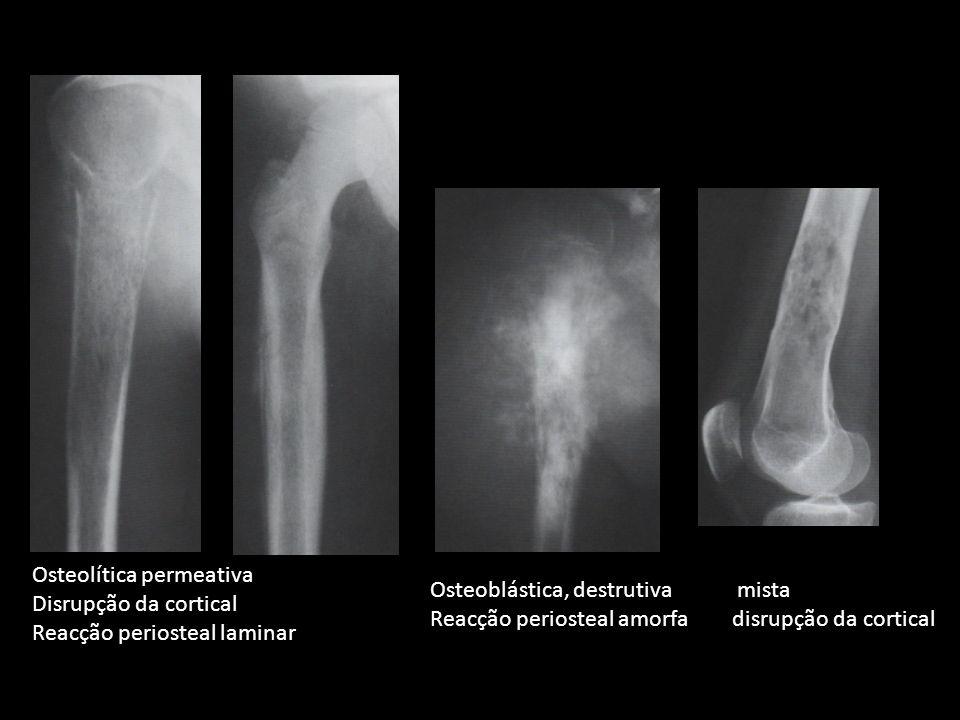 Osteoblástica, destrutiva mista Reacção periosteal amorfa disrupção da cortical Osteolítica permeativa Disrupção da cortical Reacção periosteal lamina