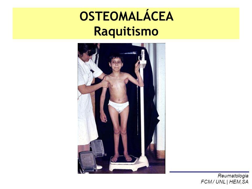 OSTEOMALÁCEA Raquitismo Reumatologia FCM / UNL | HEM,SA