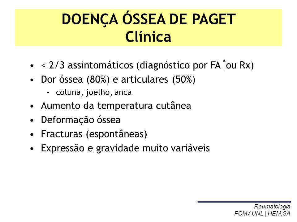 DOENÇA ÓSSEA DE PAGET Clínica < 2/3 assintomáticos (diagnóstico por FA ou Rx) Dor óssea (80%) e articulares (50%) –coluna, joelho, anca Aumento da tem