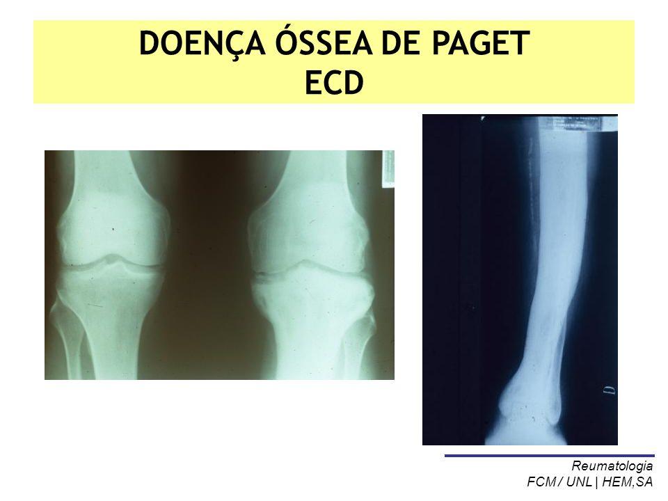 DOENÇA ÓSSEA DE PAGET ECD Reumatologia FCM / UNL | HEM,SA