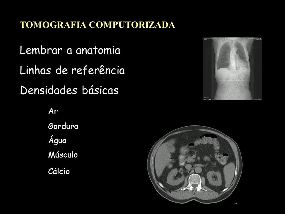 Lembrar a anatomia Linhas de referência Densidades básicas Ar Gordura Água Músculo Cálcio TOMOGRAFIA COMPUTORIZADA