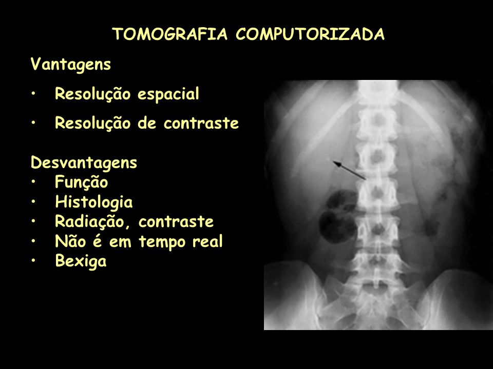 TOMOGRAFIA COMPUTORIZADA Vantagens Resolução espacial Resolução de contraste Desvantagens Função Histologia Radiação, contraste Não é em tempo real Be