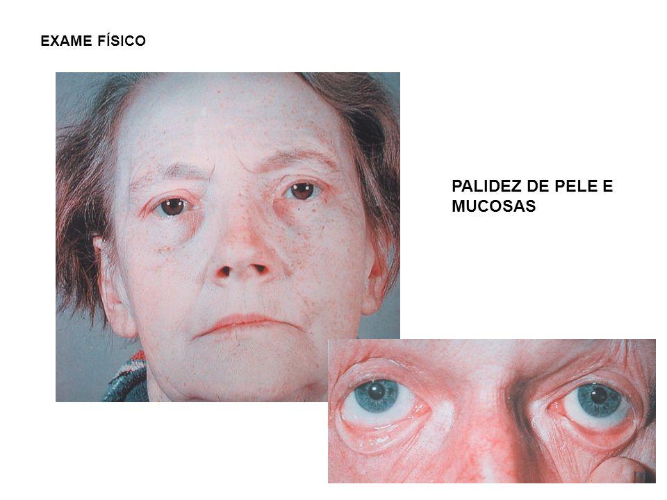 EXAME FÍSICO PALIDEZ DE PELE E MUCOSAS