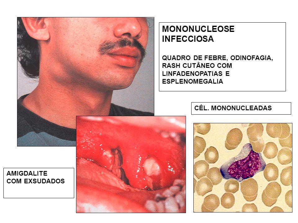 MONONUCLEOSE INFECCIOSA QUADRO DE FEBRE, ODINOFAGIA, RASH CUTÂNEO COM LINFADENOPATIAS E ESPLENOMEGALIA AMIGDALITE COM EXSUDADOS CÉL. MONONUCLEADAS