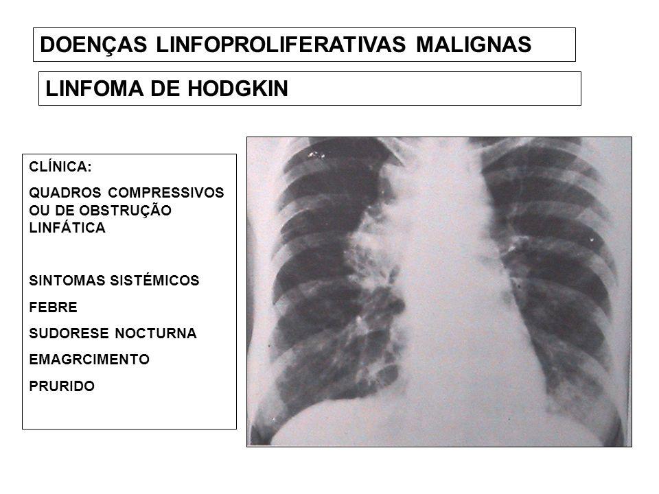 DOENÇAS LINFOPROLIFERATIVAS MALIGNAS LINFOMA DE HODGKIN CLÍNICA: QUADROS COMPRESSIVOS OU DE OBSTRUÇÃO LINFÁTICA SINTOMAS SISTÉMICOS FEBRE SUDORESE NOC