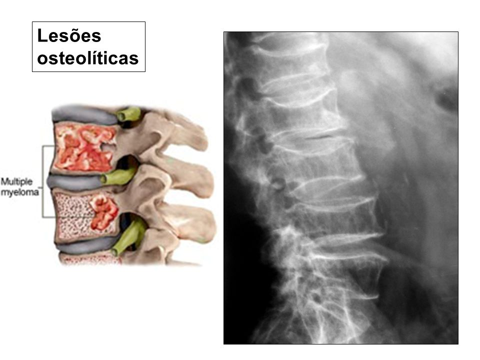 Lesões osteolíticas