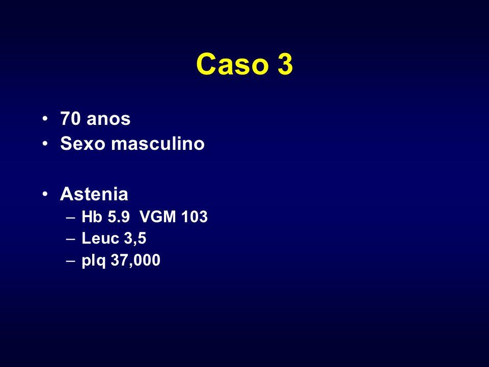 Caso 3 70 anos Sexo masculino Astenia –Hb 5.9 VGM 103 –Leuc 3,5 –plq 37,000