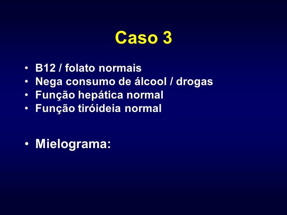 Caso 3 B12 / folato normais Nega consumo de álcool / drogas Função hepática normal Função tiróideia normal Mielograma: